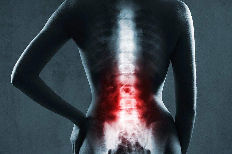 Распространенные травмы спины: переломы позвонков