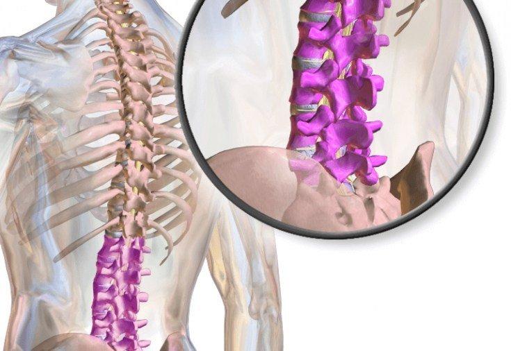 Каковы ваши варианты хирургического лечения стеноза позвоночника?